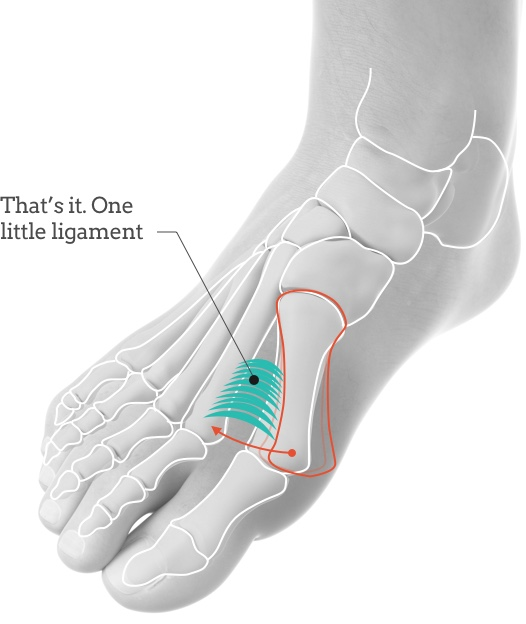 拇指外翻/拇趾外翻/Bunion one little ligament